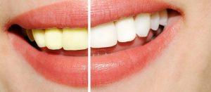teeth whitening templestowe