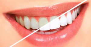 teeth whitening templestowe